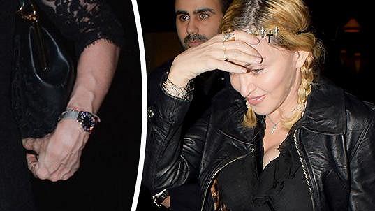 Madonna může být s výsledky mezoterapeutické metody spokojená...