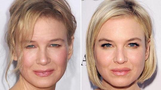 Renée Zellweger v roce 2010 (vpravo) a o sedm let později