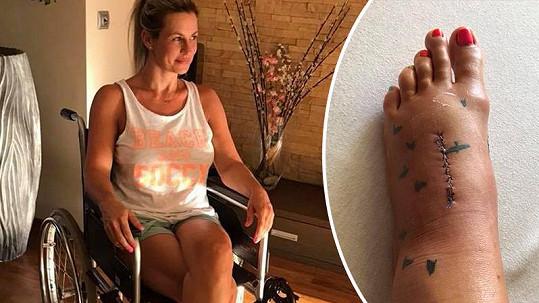 Monika Marešová se dává dohromady po operaci nohy.