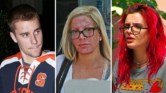 Tyto celebrity mají problémy s pletí.