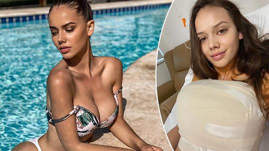 Gabriela Gášpárová má za sebou svou první plastiku.