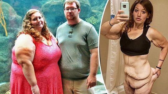 Takhle mladá Američanka vypadala před a po zhubnutí.