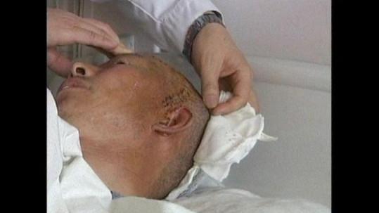 Číňan nosil v hlavě kulku 23 let, myslel si, že trpí tajemnou nemocí.