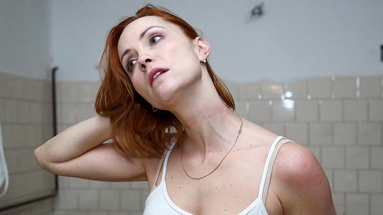 Markéta Plánková má z natáčení seriálu modřinu na krku.
