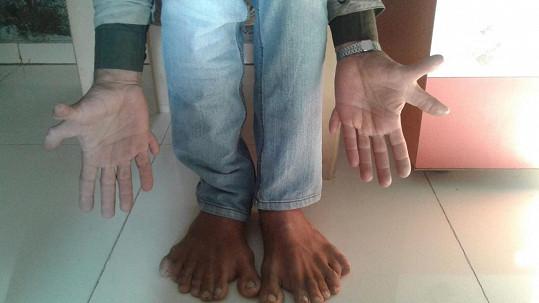 Ind s 28 prsty získal zápis do Guinnessovy knihy rekordů.