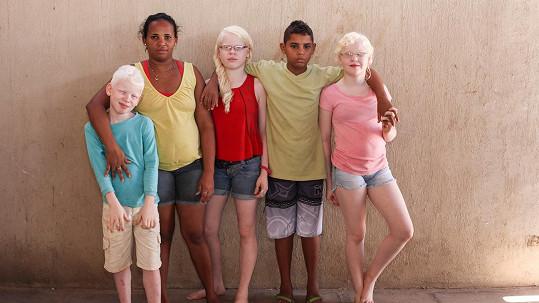 Matka Rosamere se svými třemi albínskými dětmi a synem Joaem