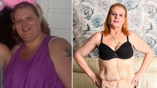 Britka Nicky Codrai (42) trpěla závislostí na slazených nápojích.