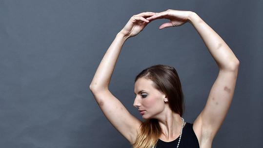 Monika Sommerová je plná modřin.