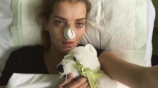 Zmožená bolestí s ofačovaným nosem a kruhy pod očima