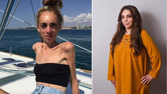 Dieta, kterou si Hannah Lucas (23) už v mladém věku naordinovala, se brzy zvrtla v anorexii.
