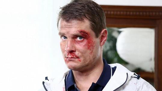 Ondřej Veselý po seriálové rvačce. Při skutečném napadení dopadl hůře.