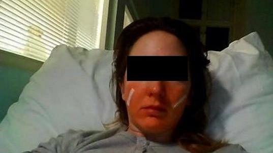 Takhle dopadla Tereza po útoku drsňáka Ektora. Ten teď za to stojí před soudem.