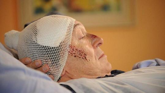 Karel Gott s obvázanou hlavou a modřinami v nemocnici. Více ve fotogalerii.