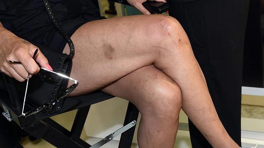 Nohy Venduly Pizingerové po výletu do Krušných hor