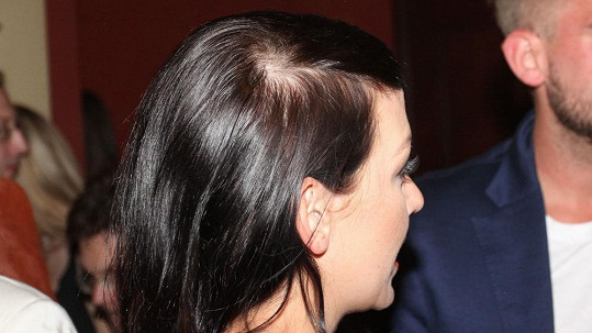 Agáta Prachařová a její začínající plešatost