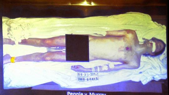 Snímek mrtvého vyhublého těla Michaela Jacksona, který ukázali před soudem.