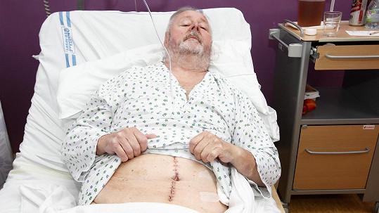 Jan Kuželka má po operaci.