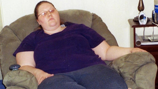 Tara Kavanagh na začátku hubnoucího procesu
