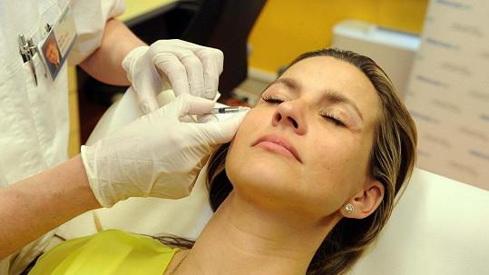 Monika Marešová si nechává píchat botox do čela a kolem očí.