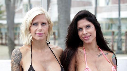 Identická dvojčata dotáhla svou podobu k dokonalosti díky plastické chirurgii.