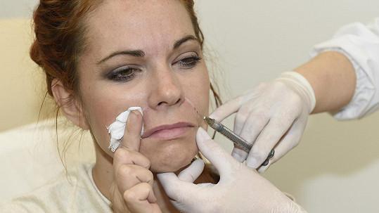 Michaela Nosková kvůli kráse trpí.