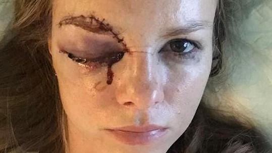 Barbora Žiačiková dostala pukem do obličeje.