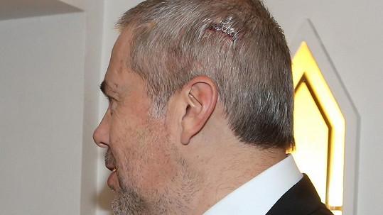Marek Eben se ošklivě zranil.