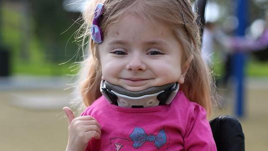 Zoe Lush je šestiletá dívenka, která patří mezi takzvané skleněné děti.