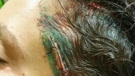 Veronika Zelníčková byla brutálně napadena....