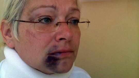 Darina Rychtářová po údajném napadení od svého chotě.