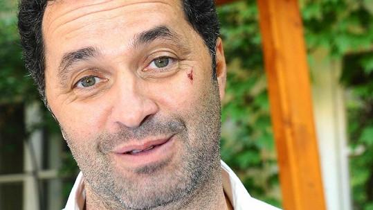 Martin Dejdar s krvavými šrámy na obličeji.