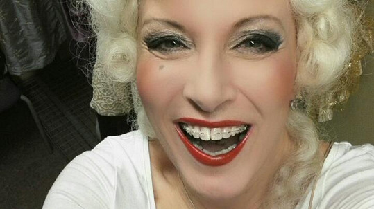 Renata začala nosit rovnátka v pokročilejším věku a úsměvu se nebojí.