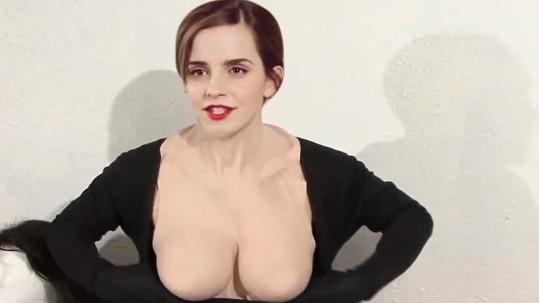 Takhle by Emma Watson vypadala po plastické operaci.