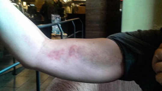 Míša Nosková ukázala zraněnou ruku.