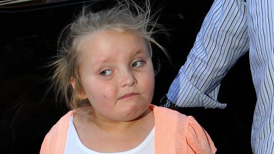 Alana Thompson, známá jako Honey Boo Boo, měla nehodu.