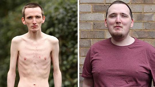 Marc vážil pouhých 45 kilogramů, teď se opět zakulatil.