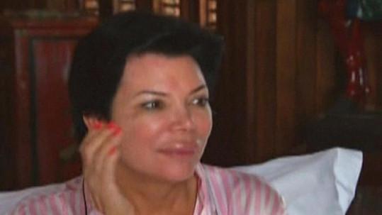 Kris Jenner a její oteklý horní ret.