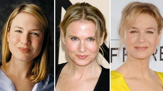 Renée v letech 2001, 2013 a 2017