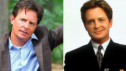 Michael J. Fox dnes a v roce 1993