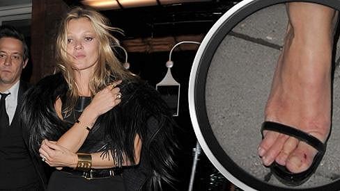 Nožky Kate Moss by potřebovaly trochu více péče.