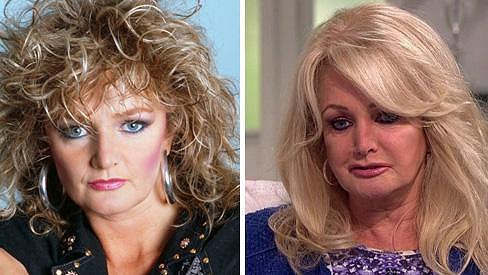 Bonnie Tyler chce zůstat mladá...