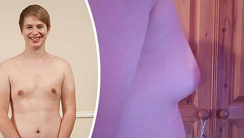 Charlie Edgeworth si nechal odstranit tukovou prsní tkáň a má po mindráku.