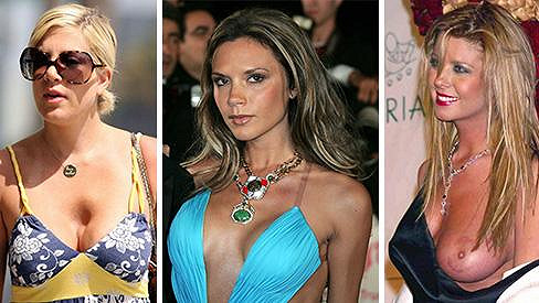 Tori Spelling, Victoria Beckham a Tara Reid- dámy, které se rozhodly pro krásu trpět.