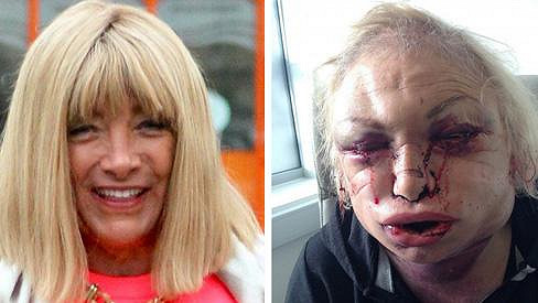 Kellie Maloney po operaci, která ji málem zabila.