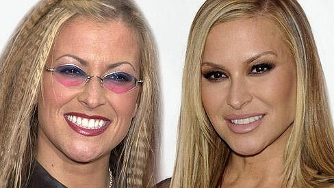 Anastacia před deseti lety (vlevo) a dnes (vpravo).