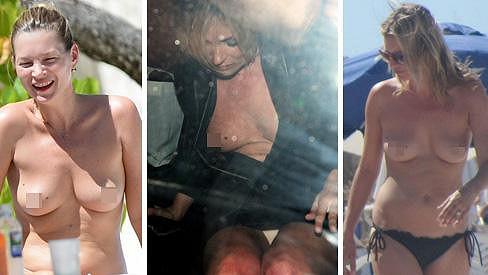 Kate Moss ostychem netrpí...