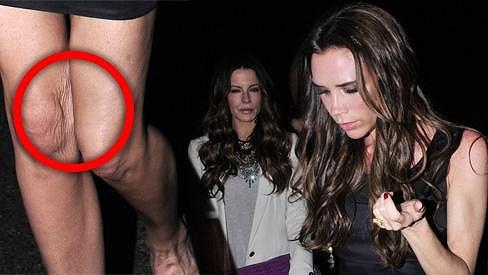 Victoria Beckham by měla přestat hubnout.