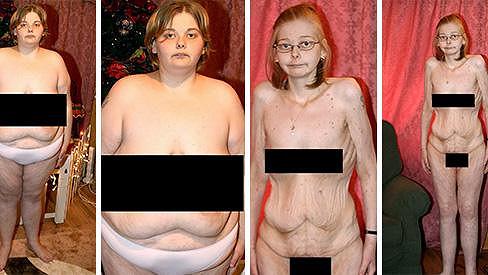 Beth Birch operace žaludku málem stála život.