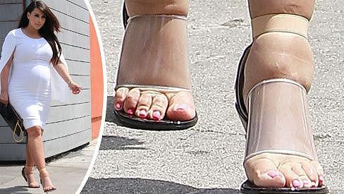Kim Kardashian chce být i za cenu bolesti stylová.