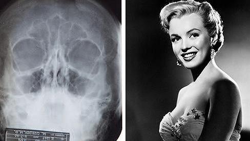 Marilyn Monroe prý podstoupila nejméně dva zákroky.